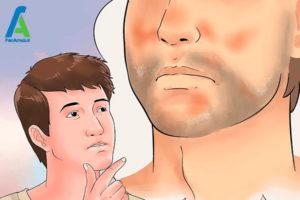 1 درمان خانگی درماتیت شوره ای