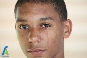 1 علت خون گریه کردن
