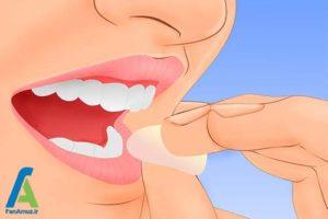 1 روش های طبیعی کاهش پلاکت خون