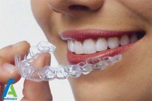 1 ضدعفونی کردن روکش موقت دندان