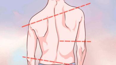Photo of سندرم اهلرز دانلوس Ehlers Danlos Syndrome چیست؟