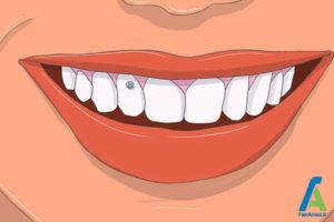 7 چسباندن نگین روی دندان