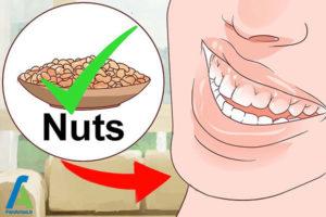 3 جلوگیری از پوسیدگی دندان