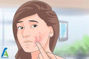 7 نحوه درمان حساسیت پوستی