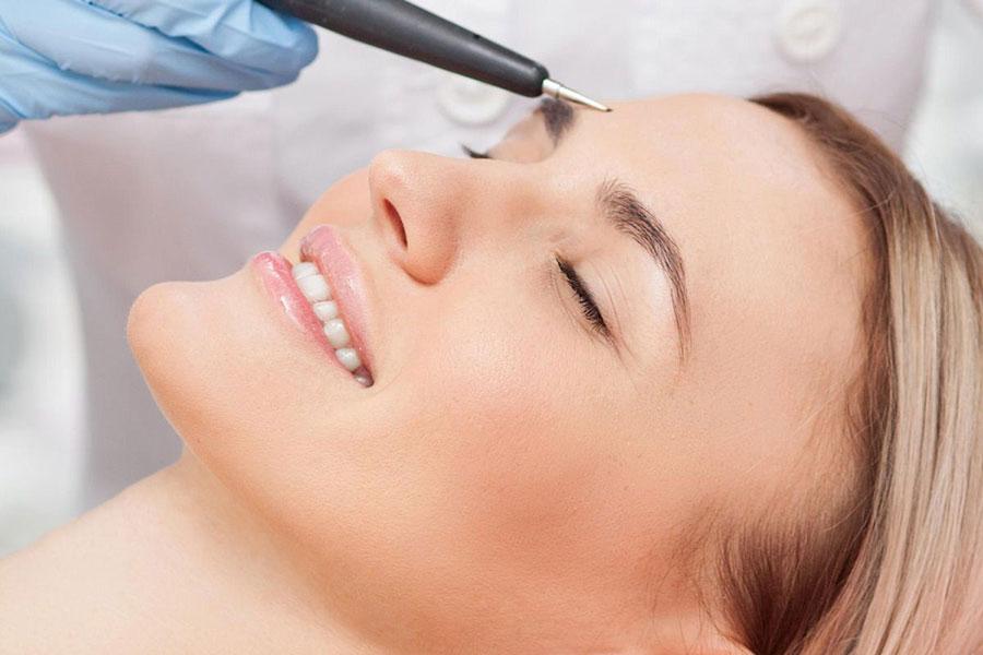 7 حذف دائمی مو با الکترولیز