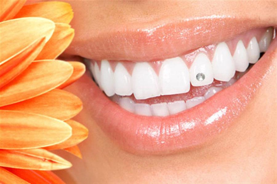 8 چسباندن نگین روی دندان