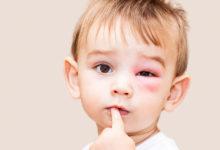 Photo of چگونه تورم های ناشی از آلرژی و حساسیت را کاهش دهیم؟
