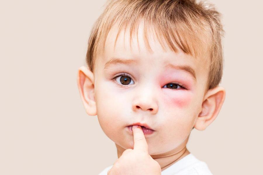 8 کاهش تورم آلرژی