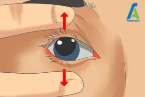 6 نحوه استفاده از لنز تماسی چشم