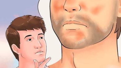 Photo of درمان خانگی پوسته پوسته شدن صورت یا درماتیت شوره ای