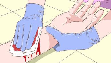 Photo of چگونگی مراقبت و ضدعفونی پانسمان و درمان خانگی زخم عفونت کرده