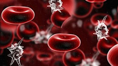 """Photo of عفونت خون """"سپسیس SEPSIS"""" چیست و چگونه باید از آن پیشگیری کرد؟"""