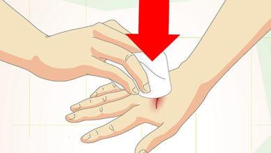Photo of چگونه از زخم های سطحی مراقبت کنیم؟