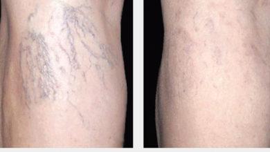 Photo of چگونه رگ های متورم پا و واریس را محو و پنهان کنیم؟