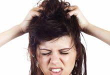 Photo of درمان خانگی و گیاهی حساسیت، درد و خارش پوست سر
