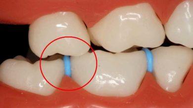 Photo of چگونه با وجود جداکننده ارتودنسی در دهان غذا بخوریم؟