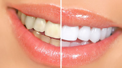 Photo of علائم از بین رفتن مینای دندان و جلوگیری از پوسیدگی آن