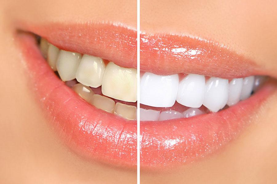 9 جلوگیری از تخریب مینای دندان