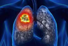 Photo of روش های درمان عفونت های قارچی و مخمری ریه Yeast Infection