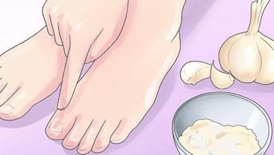 Photo of روش های خانگی درمان و پیشگیری از وقوع بیماری های پای ورزشکاران