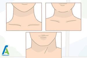 2 انتخاب گردنبند چوکر