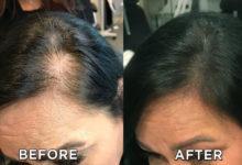 Photo of میکروبلیدینگ اسکالپ سر چیست و آیا به بهبود کم پشتی مو کمک می کند؟