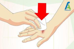 1 مراقبت زخم های سطحی