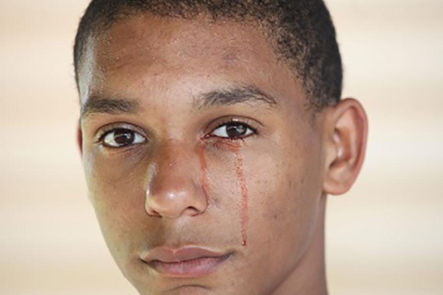 2 علت خون گریه کردن