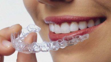 Photo of چگونه روکش یا کاور موقت دندان Snap On Smile را تمیز و ضدعفونی کنیم؟