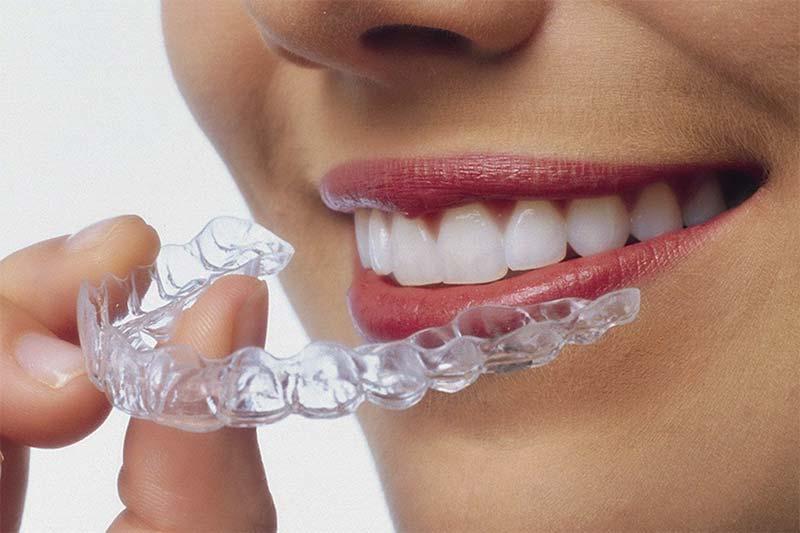 2 ضدعفونی کردن روکش موقت دندان