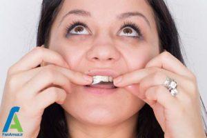 2 اصول استفاده از نوار سفید کننده دندان