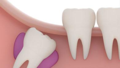 Photo of دلیل رشد نکردن دندان های دائمی چیست؟
