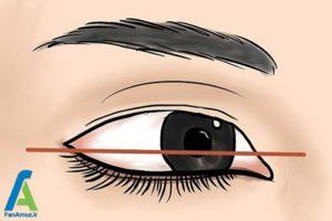 3 تشخیص حالت و فرم چشم