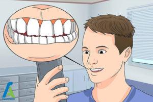 1 جلوگیری از تخریب مینای دندان