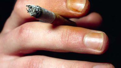 Photo of چگونه لکه نیکوتین سیگار و قلیان را از لباس، پوست، لب و دندان پاک کنیم؟