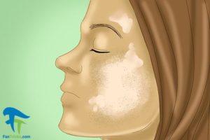 3 روش های درمان خانگی هایپرپیگمنتیشن