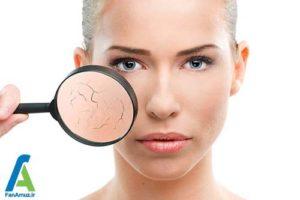 4 متعادل کردن و تنظیم PH پوست صورت