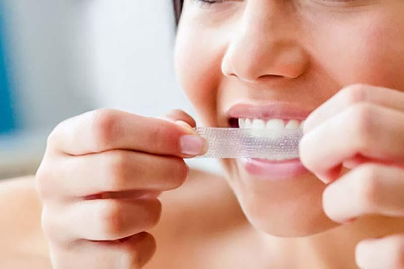 4 اصول استفاده از نوار سفید کننده دندان