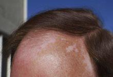 Photo of با آفتاب سوختگی اسکالپ Scalp یا پوست سر چه کنیم؟