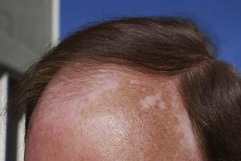4 درمان خانگی آفتاب سوختگی پوست سر