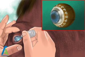 3 درمان بیماری چشمی اسب