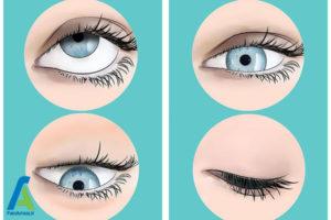 3 روشهای درمان مگس پران