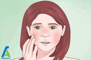5 مراقبت بعد از عمل میکرودرم ابریژن