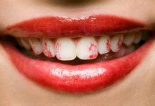 Photo of چگونه مانع از مالیدن رژلب به دندان هایمان شویم؟