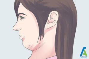 4 درمان خانگی سردردهای منشا گردن