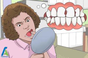 4 جلوگیری از تخریب مینای دندان