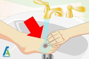 6 مراقبت زخم های سطحی