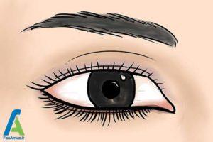 7 تشخیص حالت و فرم چشم