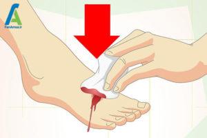 7 مراقبت زخم های سطحی
