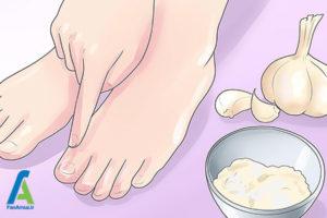 6 قارچ پا و بیماری پای ورزشکاران